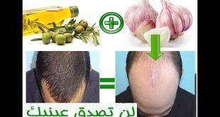 صور علاج تساقط الشعر بالثوم وزيت الزيتون , اقوى الوصفات التى تساعد علي تقوية الشعر