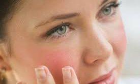 صورة ما هو مرض الذئبة الحمراء , الطفح الجلدي علي الوجه