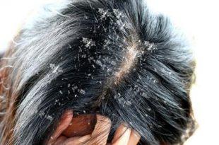 صور علاج قشره الراس , افضل علاج لقشرة الشعر