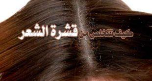 صورة علاج قشرة الشعر الجاف , طرق طبيعية للعلاج