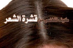 صور علاج قشرة الشعر الجاف , طرق طبيعية للعلاج