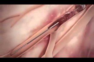صورة عملية القسطرة للقلب , التدخل التاجي عبر الجلد
