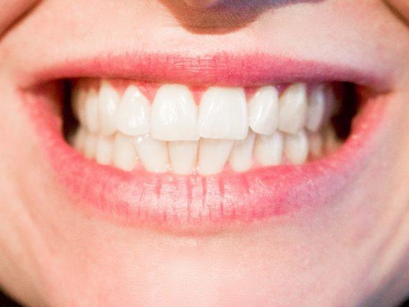 صور تفسير حلم تخلخل الاسنان , معني خلخله السن في الحلم