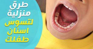 صورة علاج تسوس الأسنان, أسباب تسوس الاسنان