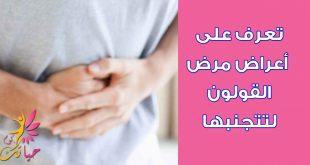 صورة مرض القولون , اعراض واسباب مرض القولون
