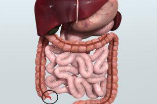 صورة التهاب شديد جدا , اعراض الزائدة الدودية